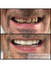 Zirkonkrone - Summer Dental