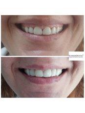 Zahnfleischchirurgie - Summer Dental