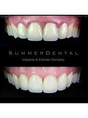 Parodontose-Behandlung - Summer Dental