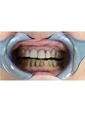 Zirconia Crown - a-dent Dental Clinic