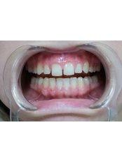 Dental Bonding - a-dent Dental Clinic