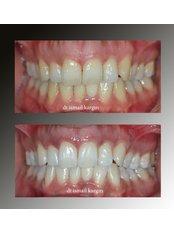 Teeth Whitening - BeyazAda Dental Clinic