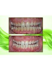 Gingivitis Treatment - BeyazAda Dental Clinic