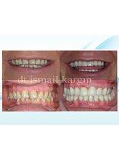 Full Mouth Rehabilitation - BeyazAda Dental Clinic