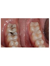 White Filling - BeyazAda Dental Clinic