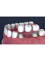 Dental Bridges - dentalcosmeticturkey