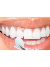 Chipped Tooth Repair - dentalcosmeticturkey
