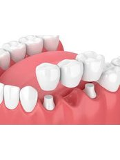 Permanent Bridge - dentalcosmeticturkey