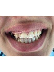 Zirconia Crown - DentOdream / Dental Dream Turkey