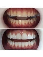 Teeth Whitening - Ezgi's Smile House