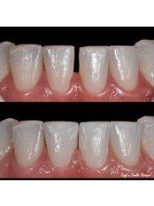 Dental Bonding - Ezgi's Smile House