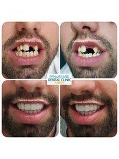 Dental Crowns - Panoramik  Dental Clinic Turkey