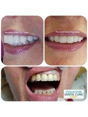 CEREC Dental Restorations - Panoramik  Dental Clinic Turkey