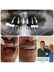 All-on-4 Dental Implants - Panoramik  Dental Clinic Turkey