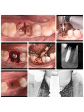 CAD/CAM Dental Restorations - Panoramik  Dental Clinic Turkey