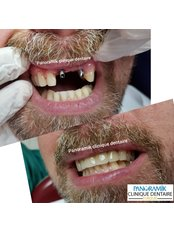 Immediate Implant Placement - Private Panoramik Oral and Dental Clinic
