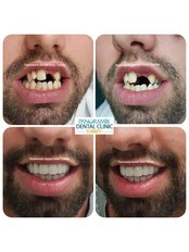 Dental Crowns - Private Panoramik Oral and Dental Clinic