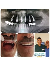 All-on-4 Dental Implants - Private Panoramik Oral and Dental Clinic