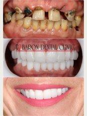 Baron Dental Clinic / Dental Tourism Antalya - Side Mah.Inonu Bulv M.Erkek, Apt 2 6 Z3, Manavgat, Antalya, 07600,