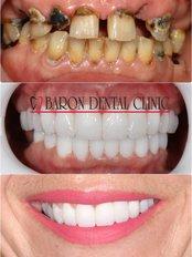 Baron Dental Clinic / Dental Tourism Antalya - Side Mah.Inonu Bulv M.Erkek, Apt 2 6 Z3, Manavgat, Antalya, 07600,  0