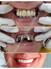 Baron Dental Clinic - SIDE MAH.INONU BULV. M.ERKEK APT 2 6 Z3 MANAVGAT, ANTALYA, ANTALYA, 07600,  0