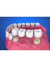 Dental Bridges - Denart Smile Centre-Side, Manavgat