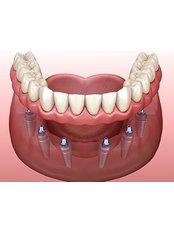 All-on-6 Dental Implants - Dent Plaza Group