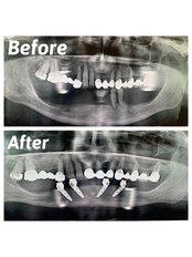 All-on-4 Dental Implants - Dent Plaza Group