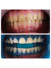 Teeth Whitening - Dent Plaza Group