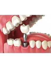 Single Implant - Dent Plaza Group