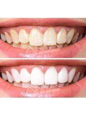 Teeth Whitening - Akva Dental Clinic