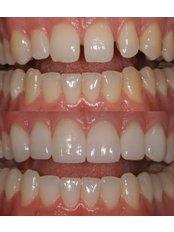 Dental Bonding - Akva Dental Clinic