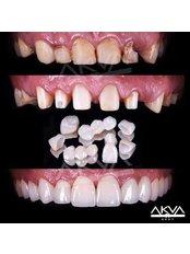 Ivoclar Emax All Ceramic Veneers - Akva Dental Clinic