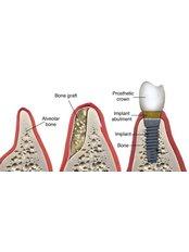 Bone Graft - Akva Dental Clinic