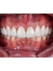 Dental Crowns - Akva Dental Clinic