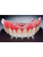 Dentures - Akva Dental Clinic