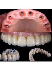 All-on-6 Dental Implants - Akva Dental Clinic