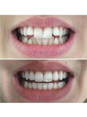 Invisalign™ - Akva Dental Clinic
