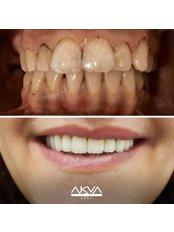 DSD - Digital Smile Design - Akva Dental Clinic