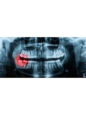 Panoramic Dental X-Ray - Akva Dental Clinic