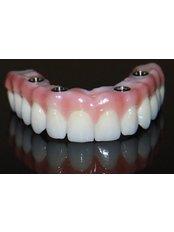 All-on-4 Dental Implants - Akva Dental Clinic