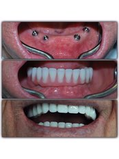 Dental Implants - Dr.Dt Tolga Gülçiçek  / Advance Implantology  & Esthetic Dentistry  / Oral and Maxillofacial Surgeon
