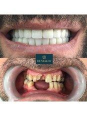 Dental Crowns - Dentakay