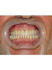 Zahnimplantate - Dr. Cem Baysal
