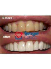 Teeth Whitening - Sengel clinics