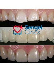 Zirconia Crown - Sengel clinics