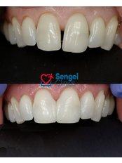 Composite Veneers - Sengel clinics