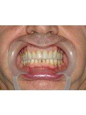 Zirconia Crown - Dr.Cem Baysal - Implantology/Radiology Specialist