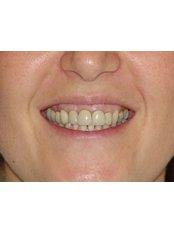Dental Crowns - Dr.Cem Baysal - Implantology/Radiology Specialist