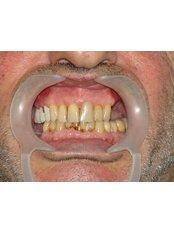 Dental Implants - Dr.Cem Baysal - Implantology/Radiology Specialist